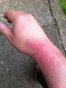wrist_bruise